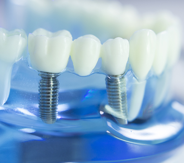 Middle Island Dental Implants